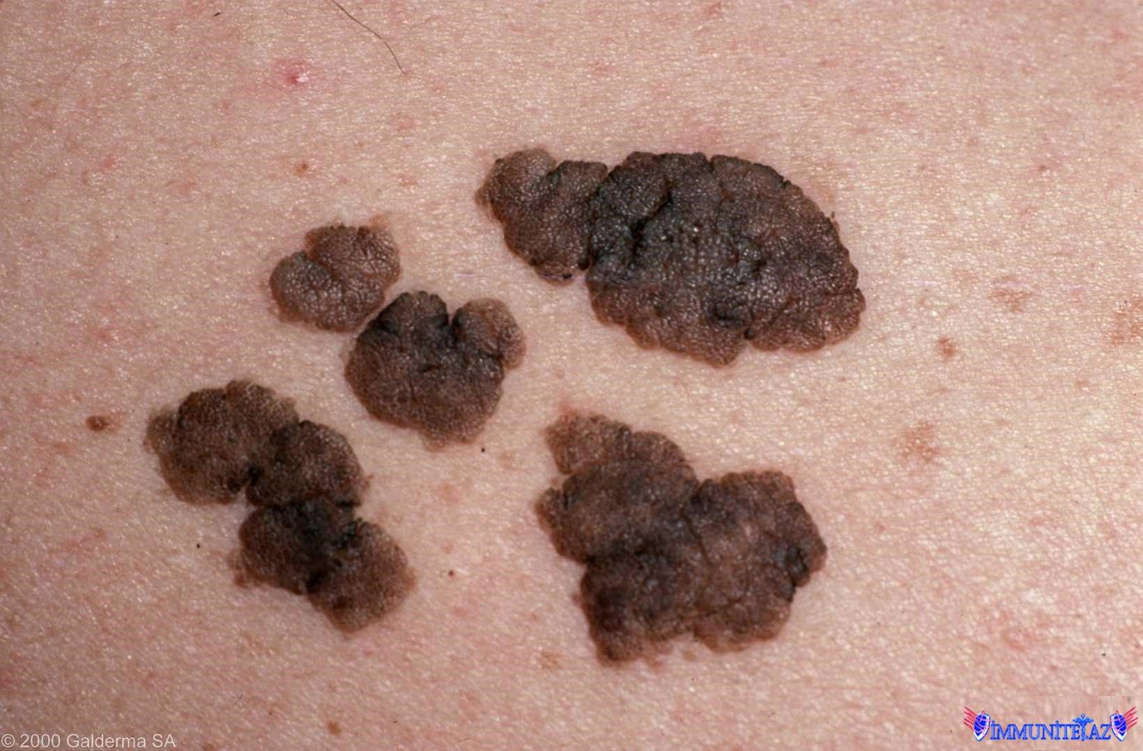 Epidermal nevus