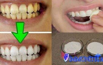 Sarı dişlərin 2 dəqiqədə ağardılması
