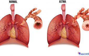 Bronxial astma zamanı adrenergik disbalans, xolinergik və sinir-psixi variantları