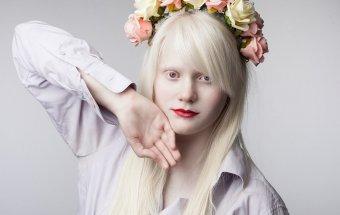 Albinos Albinizm nədir