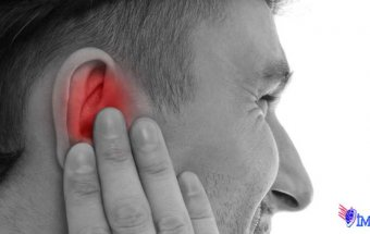 Dil-udlaq sinirinin nevralgiyası