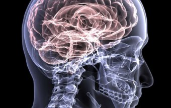 Kəllə beyin travması