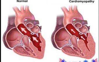 İşemik kardiomiopatiya