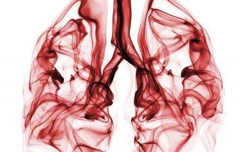 Toksik fibrozlaşan alveolit