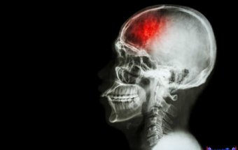 Kəllə beyin travmasının nəticələri