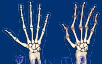 Revmatoid artritin kliniki mənzərəsi