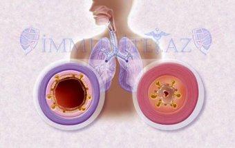 Bronxial astmanın pilləli müalicəsi
