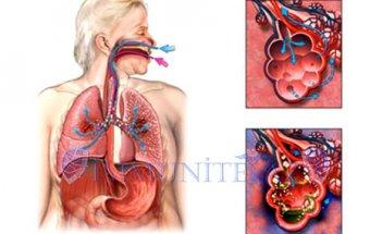 Aspirasion pnevmoniya