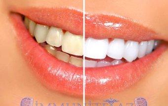 Dişlərin emalının pozulması